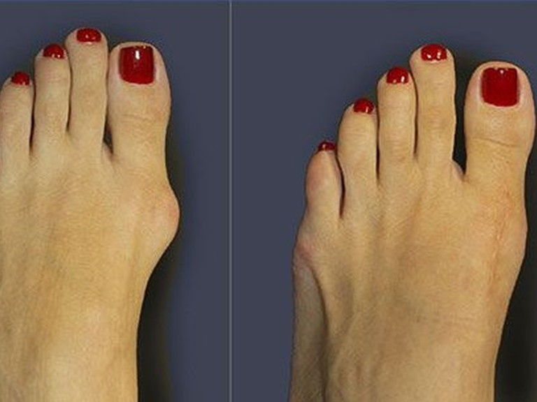 kirurski-center-tos-hallux-valgus-1