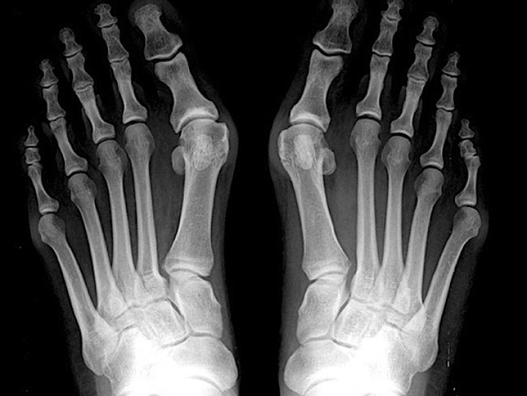 kirurski-center-tos-hallux-valgus-3